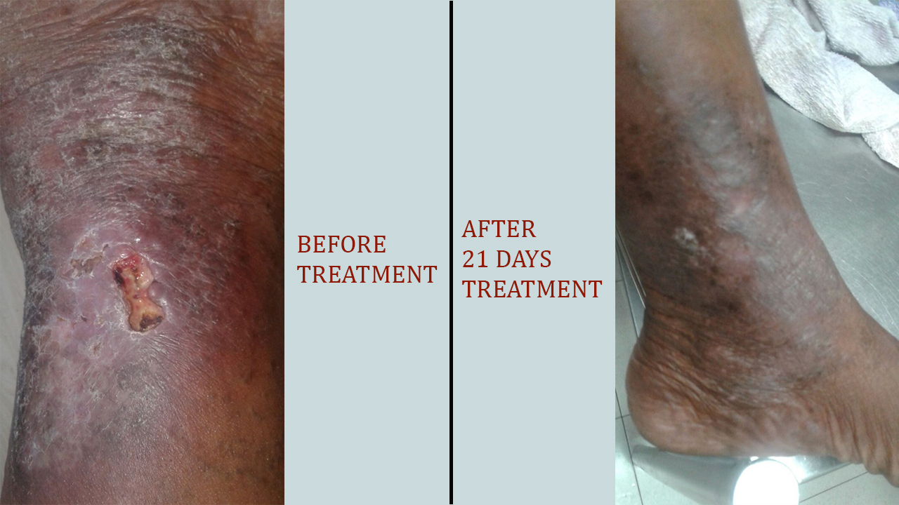 Varicose ulcer picture before and after varicose ulcer treatment in Calicut.